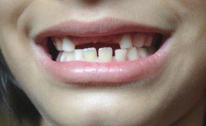 children-loose-teeth